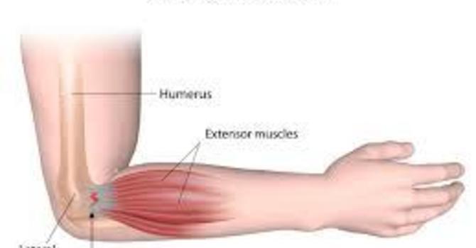 Tennis Elbow AKA Lateral Epicondylitis image